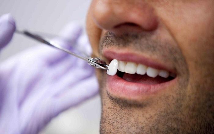 Porcelain-Dental-Veneers-Melbourne