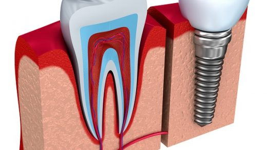 Understanding the Procedure and Benefits of Dental Implants